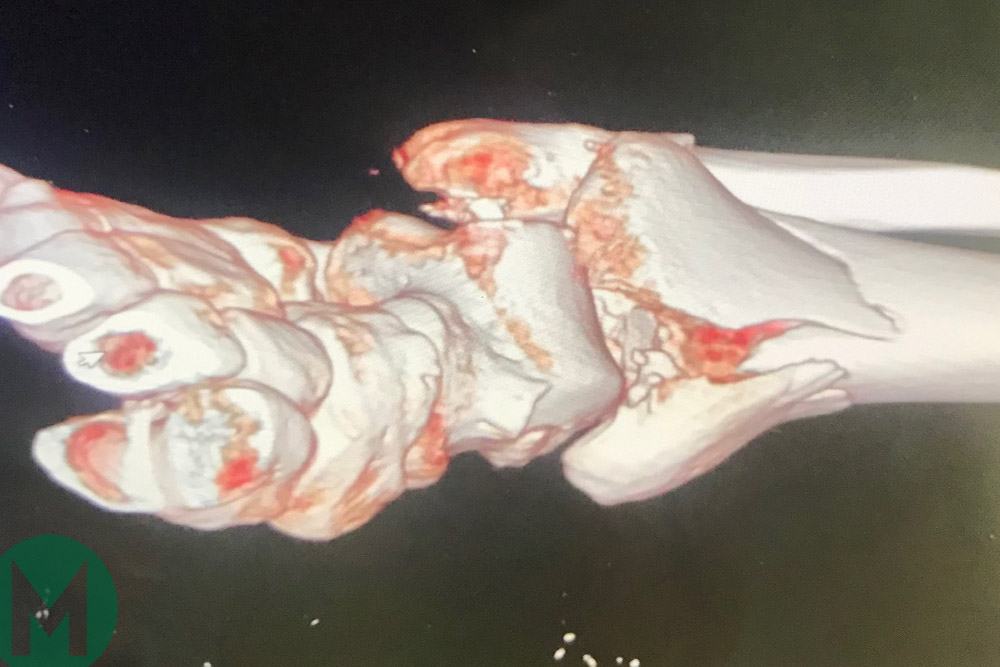 A scan of Cal Crutchlow's ankle after his crash at Phillip Island in 2018